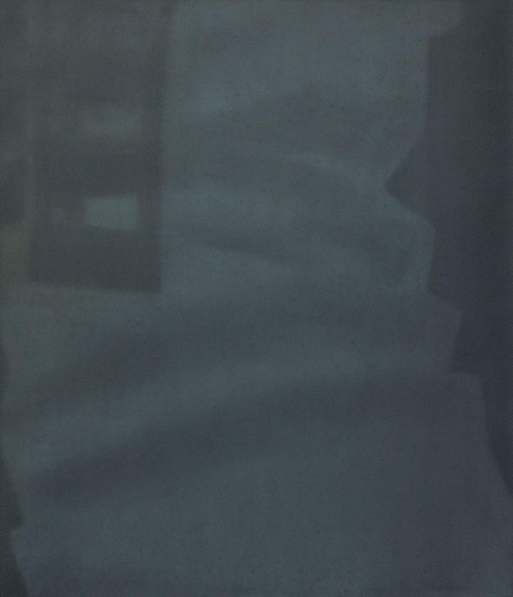 Camera obscura 3, olej na plotnie, 70 x 60 cm, 2017_resize